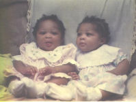 Great Miracles from Fibroid to twin Babies